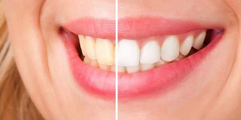 teeth close up before and after laser tooth whitening treatment